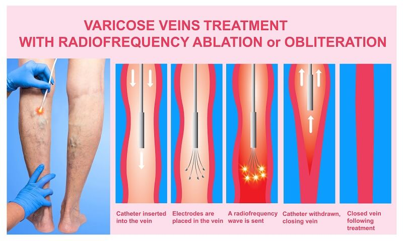 RADIOFREQUENCY (RF) VEIN ABLATION